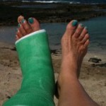 Susan's Broken Foot